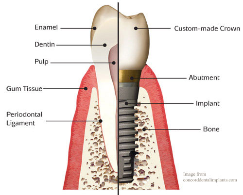 Dental implants in Kerala
